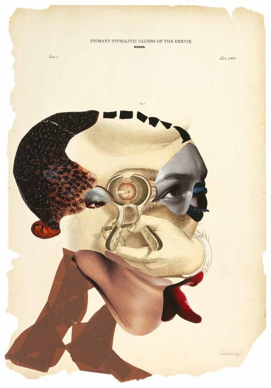 Wangechi Mutu, Primary syphilitic ulcers of the cervix